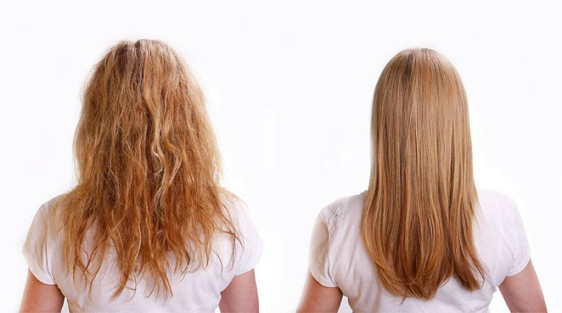 Йод при выпадении волос отзывы