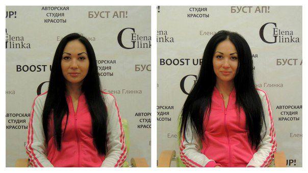 Процедура буст ап фото до и после